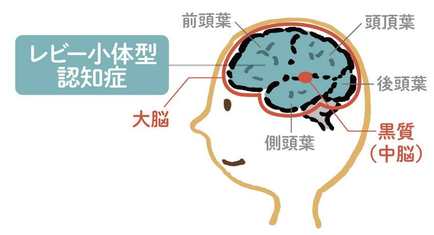 認知 と 症 体型 小 は レビー